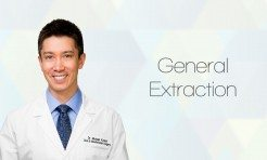 General extractions by Dr. Michael S. Kunkel, DDS